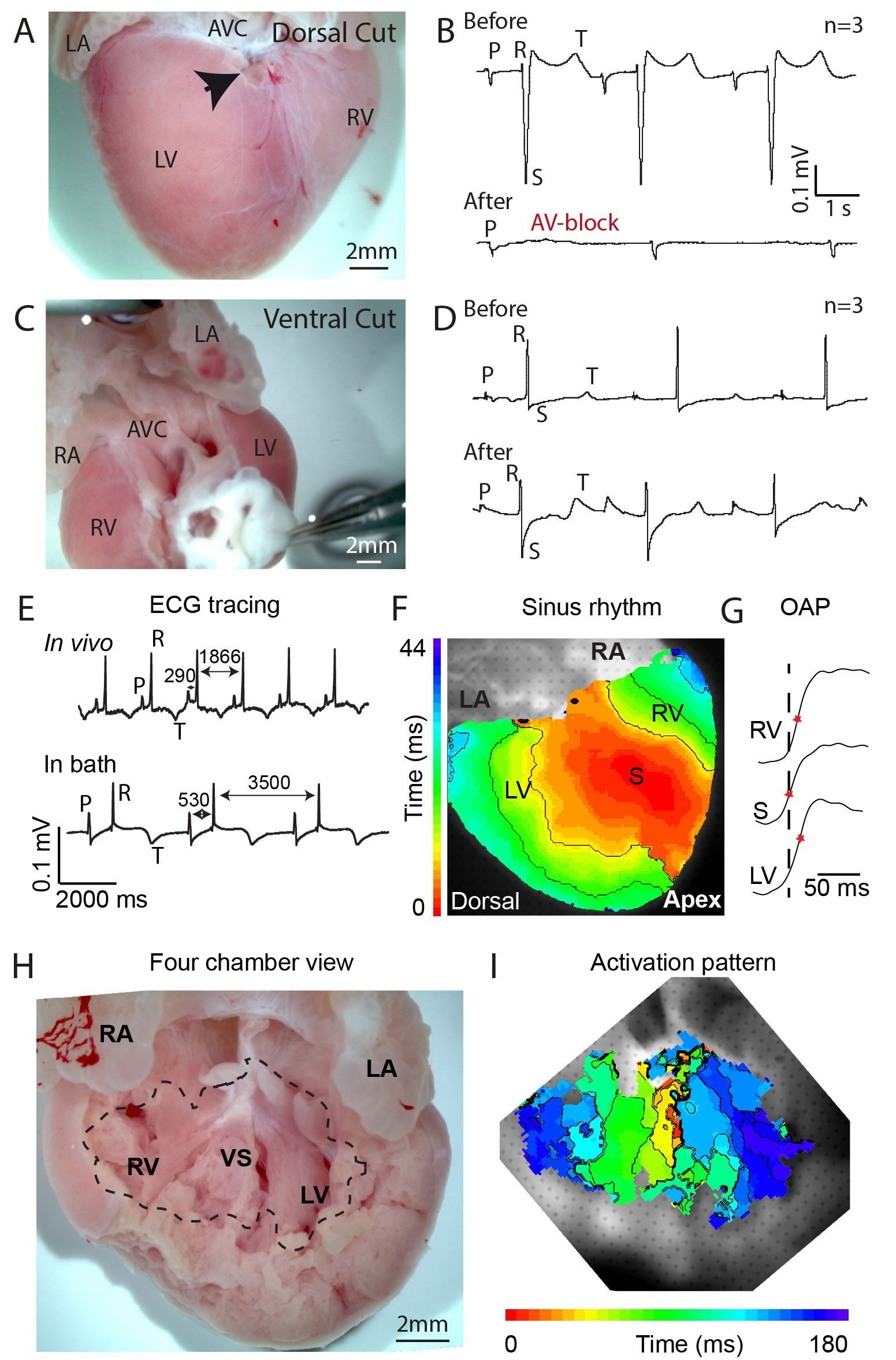 Specialized impulse conduction pathway in the alligator heart | eLife