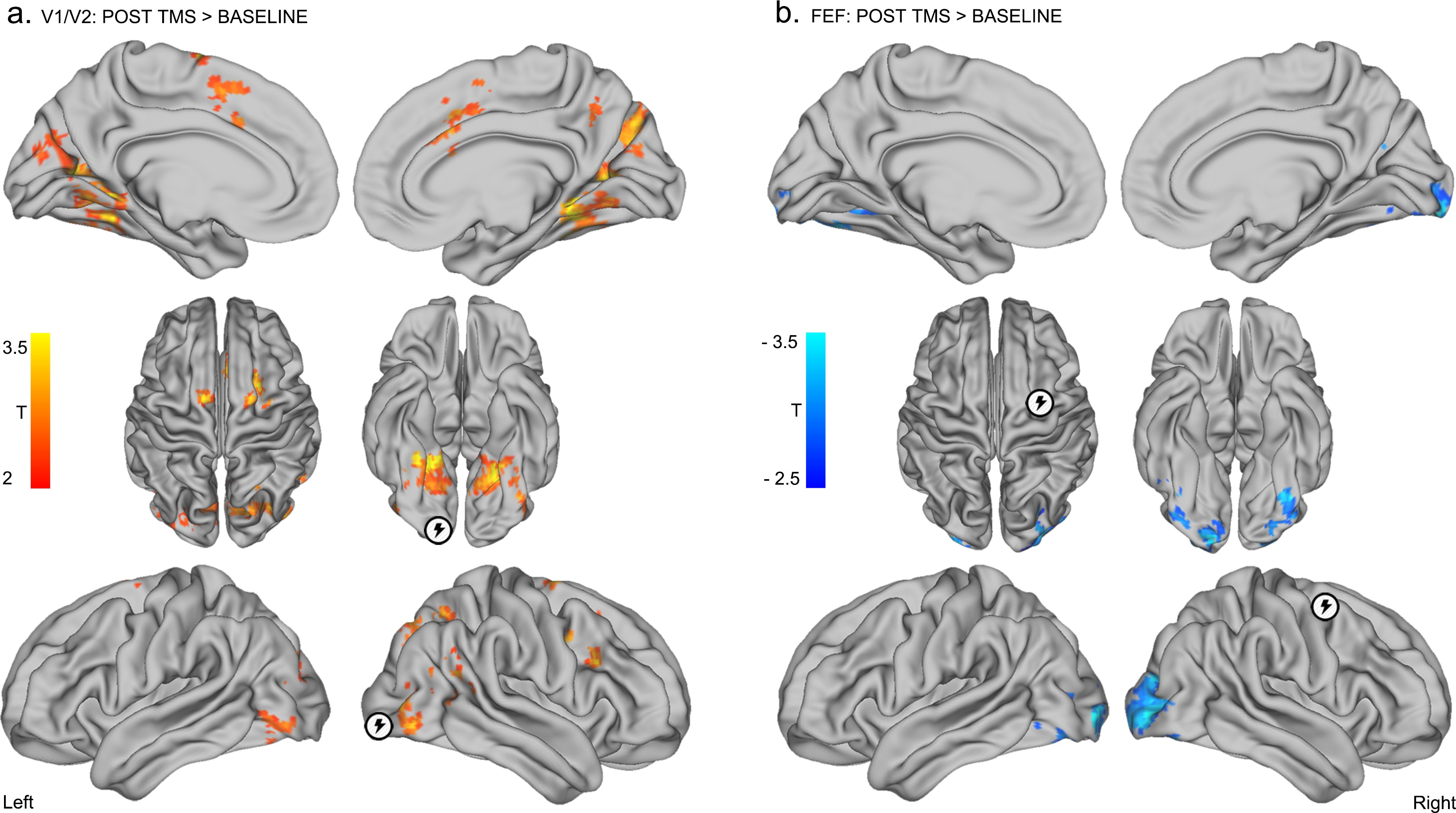 A hierarchy of timescales explains distinct effects of local ...