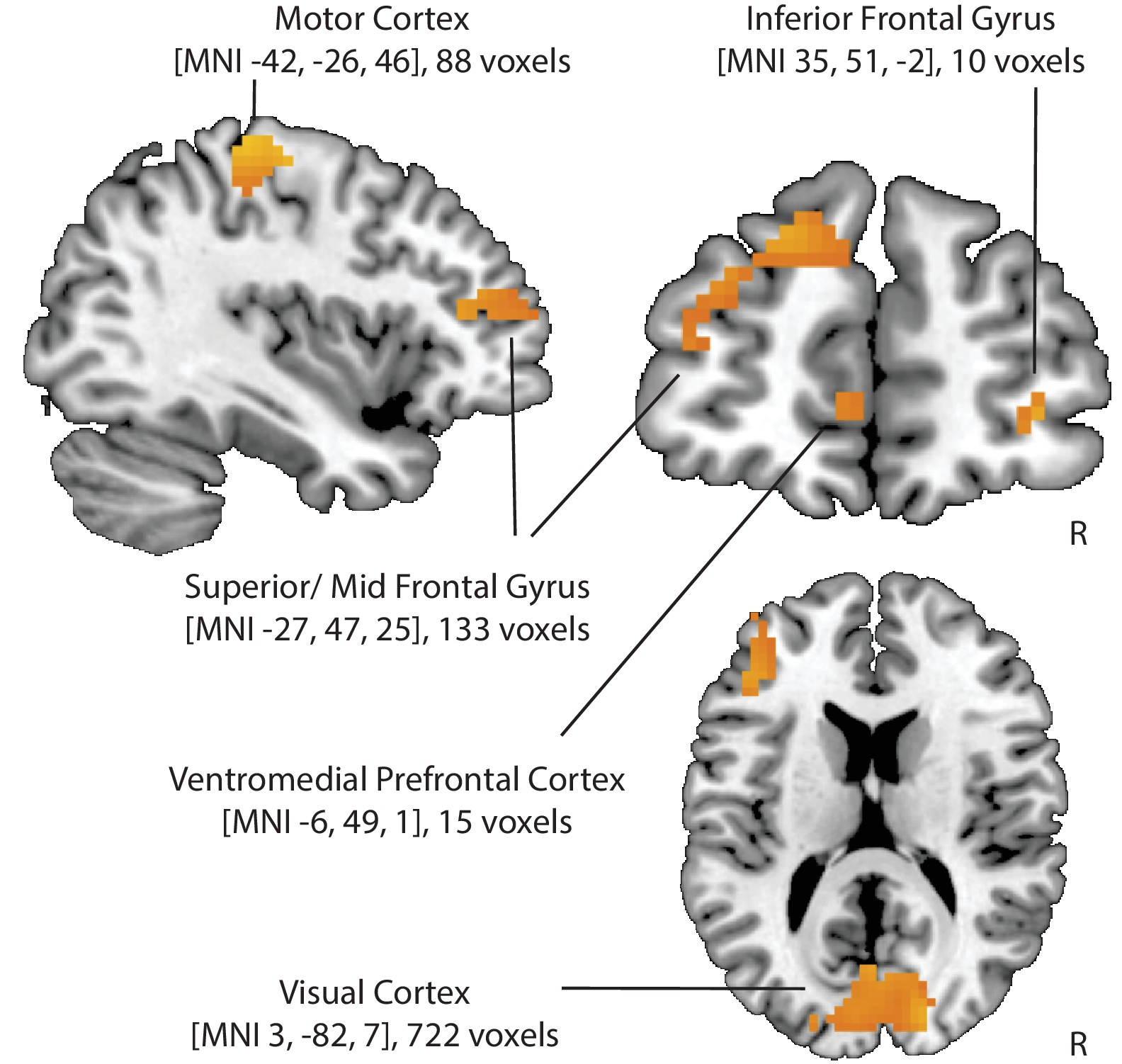 Figures and data in Cognitive regulation alters social and dietary ...